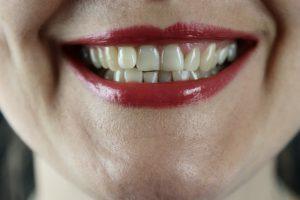 parodontoza parodontalna bolezen